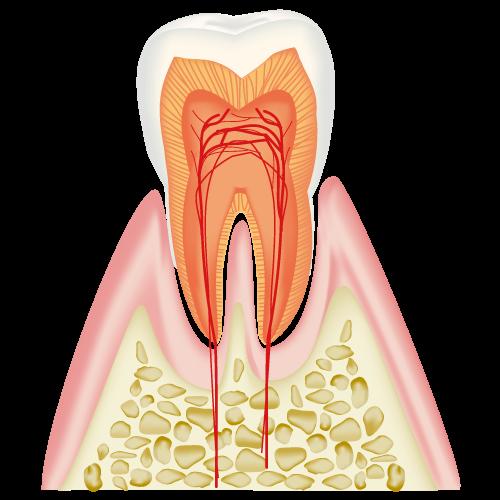 CO(初期の虫歯)